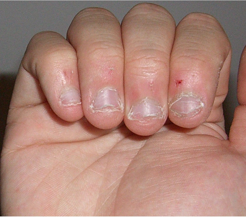how-to-grow-longer-nails-in-a-matter-of-days