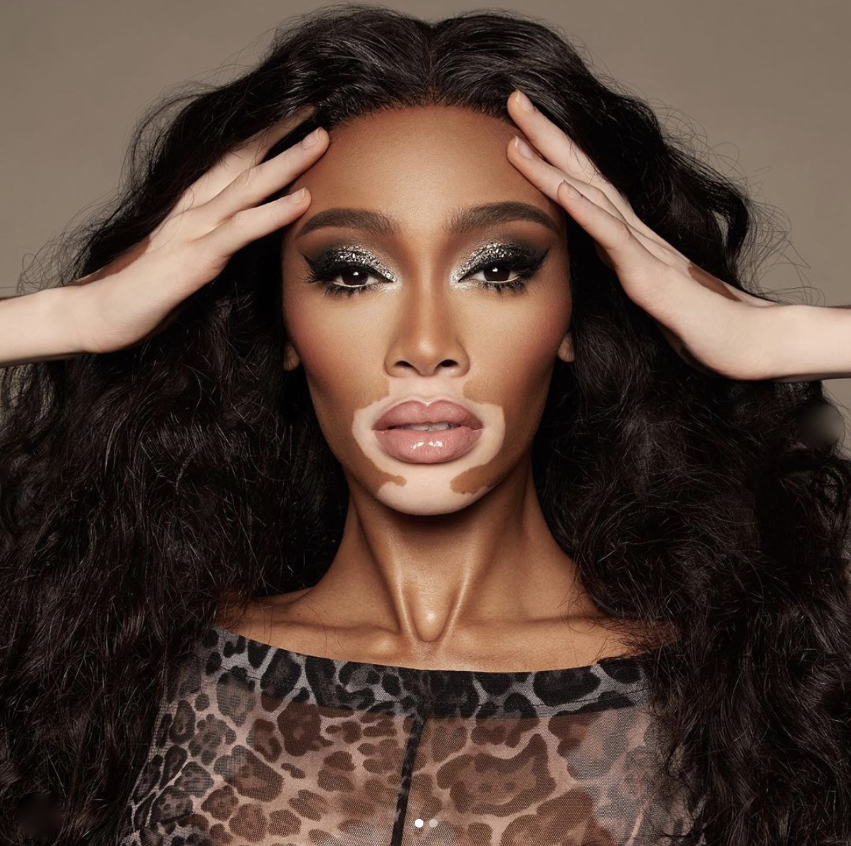 Winnie harlow quotes by black women stylerave