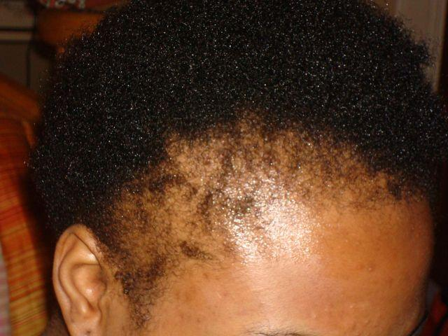 telogen-effluvium-alopecia-traction-hairloss-causes-solution-style-rave